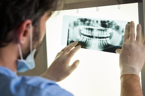 male dentist examines dental x-ray